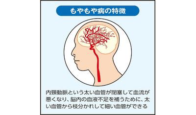 脳の毛細血管が異常に発達―もやもや病 最も多いのは10歳以下の子ども