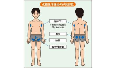 毛穴に炎症を起こす化膿性汗腺炎 脇や尻にうみがたまり痛む