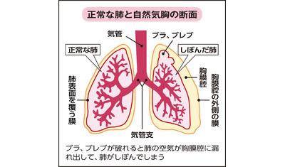 真ん中 胸 痛い と の 押す