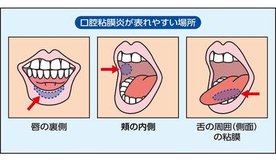 がん治療による口内炎  治療前の歯科診療で予防を