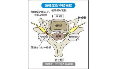 片側の腕や手に痛み・しびれ  頸椎症性神経根症