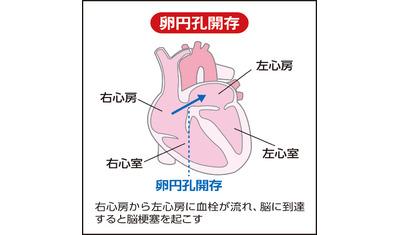 脳梗塞の再発防ぐ新治療法 心臓の「穴」を器具でふさぐ