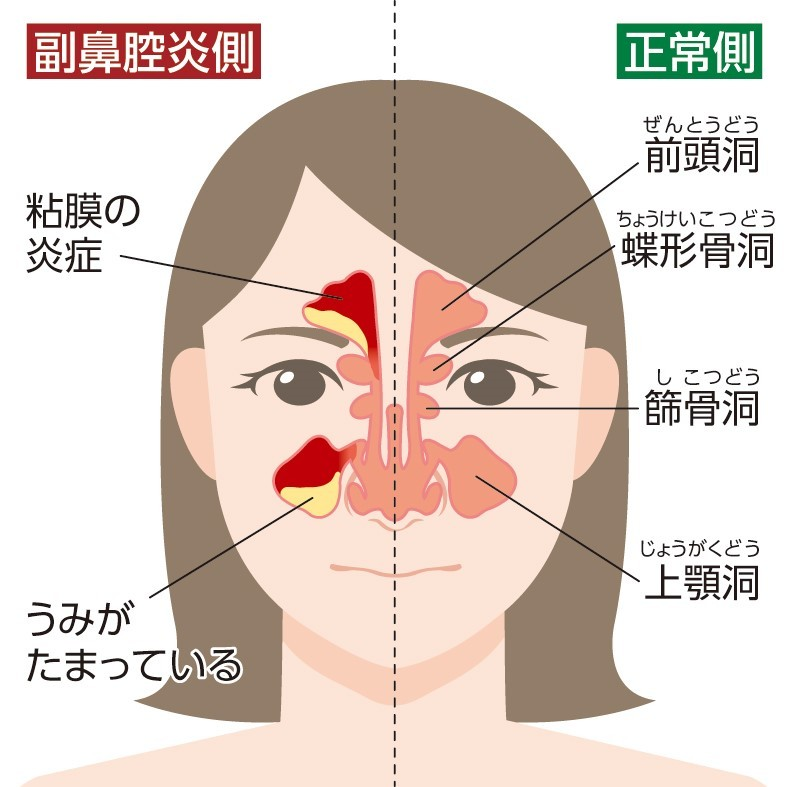 Images of 蓄膿症 - JapaneseClass.jp