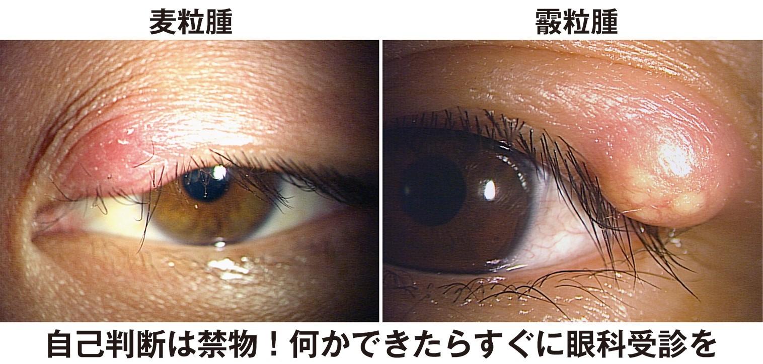 「よくあるのが、花粉症とものもらいを併発するケース。アレルギーによる免疫力低下が原因です」と有田医師。「そもそも麦粒腫は、体のあちこちに存在しているブドウ