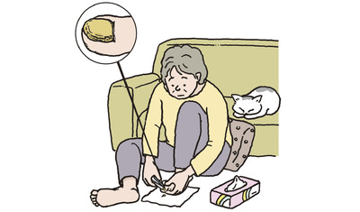 足の爪が分厚く変色―爪甲鉤彎症 治療は皮膚科でしっかりと(東皮フ科医院 東禹彦院長)