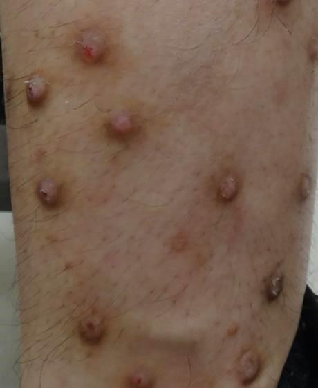 発端は虫刺され. 結節性痒疹は、肌をかくことでかゆみを伝える神経が刺激されて、さらに強いかゆみを覚え、かき続けるうちに硬く盛り上がると考えられている。