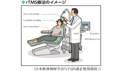 薬が効かないうつ病の選択肢―rTMS療法 脳への磁気刺激で症状が改善(昭和大発達障害医療研究所 中村元昭副所長)