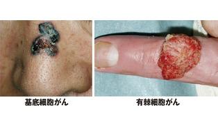 そのホクロ、皮膚がんかも?=高齢化に伴い患者数が増加
