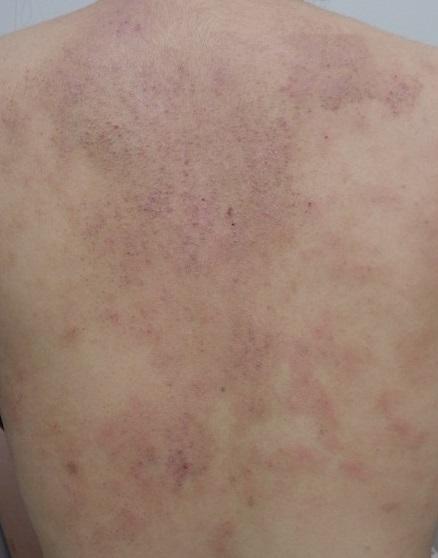 大人 アトピー 炎 性 皮膚