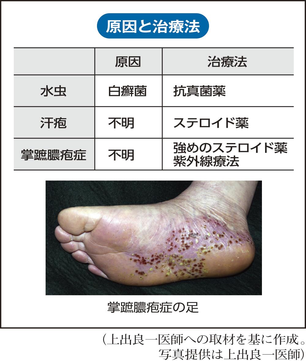 症状 水虫