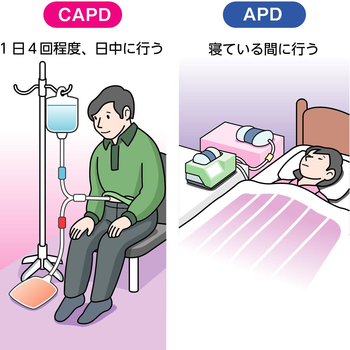 自宅や職場で行える腹膜透析専門家・施設不足で普及に課題|医療 ...