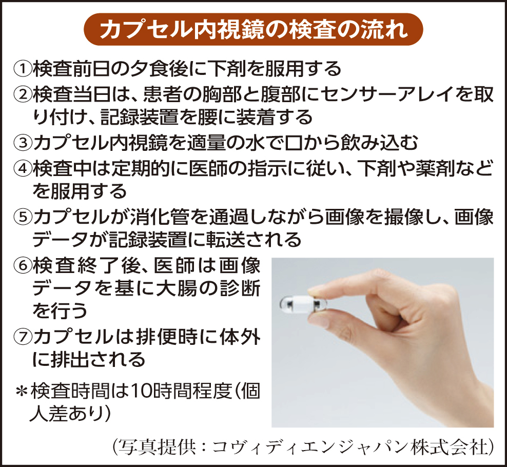視 鏡 内 時間 大腸 検査
