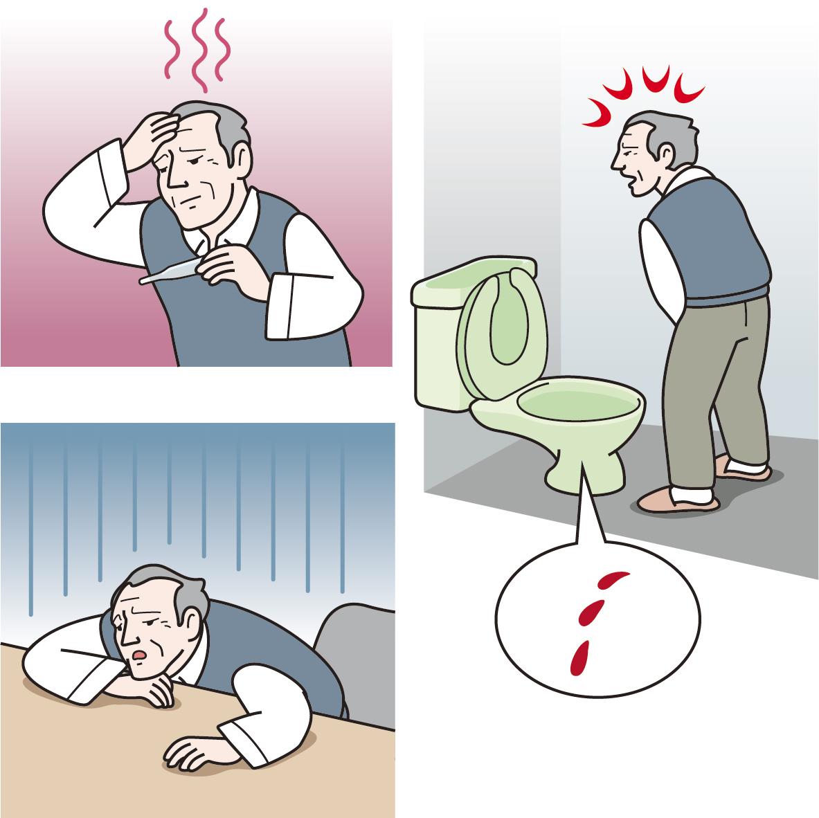 腎炎 予防