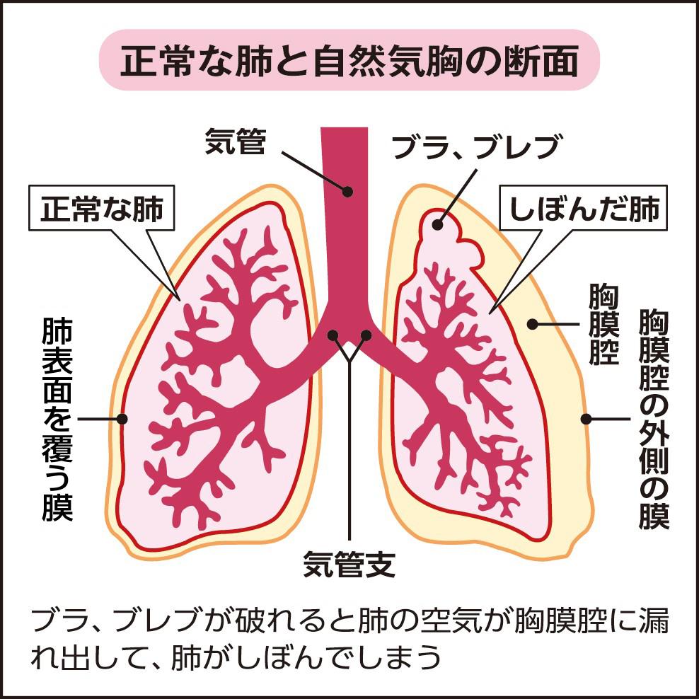 すると 痛い 深呼吸 肺 が