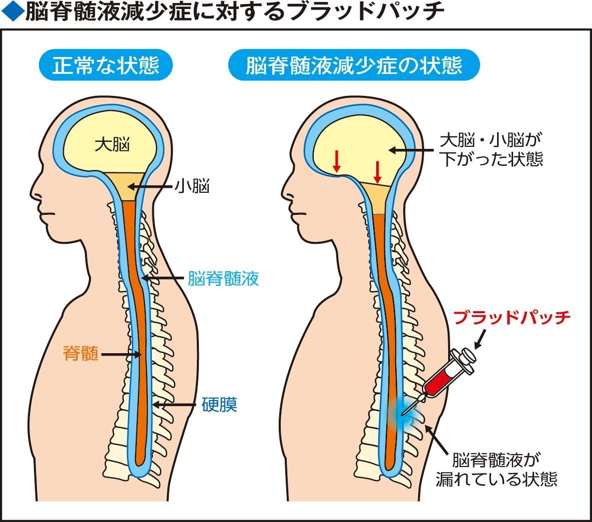 https://medical.jiji.com/images/image/topics/ce266c80b84963aef9da404a21d51aa8.jpeg