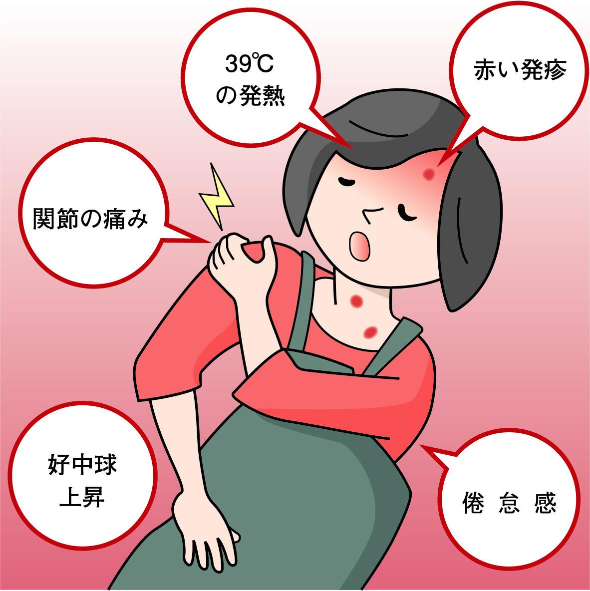 コロナ 蕁 麻疹 症状