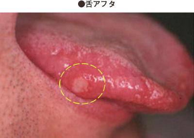 口の(粘膜)症候性|家庭の医学|時事メディカル