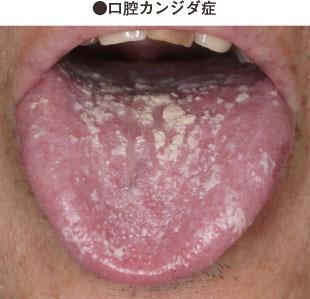皮膚 カンジダ 症