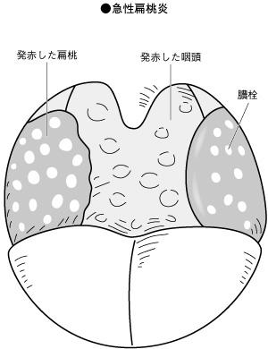 扁桃炎 コロナ