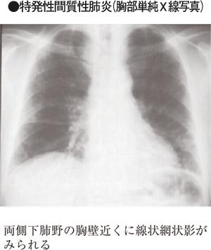 肺 線維 性 症 特発