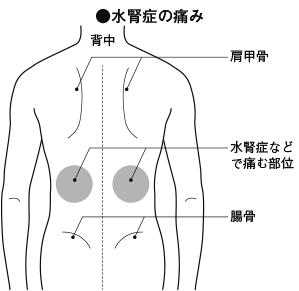 痛み 腎臓 の 背中