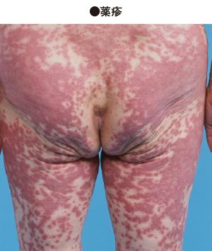 原因 膨隆 疹 蕁麻疹について