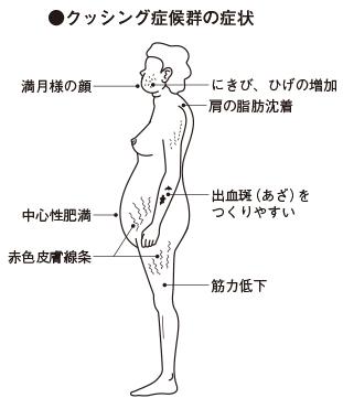 アルドステロン 原発 症 太る 性